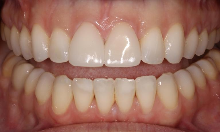Veneers-and-Infiltrations-After-Image