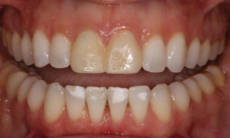 Veneers-and-Infiltrations-Before-Image